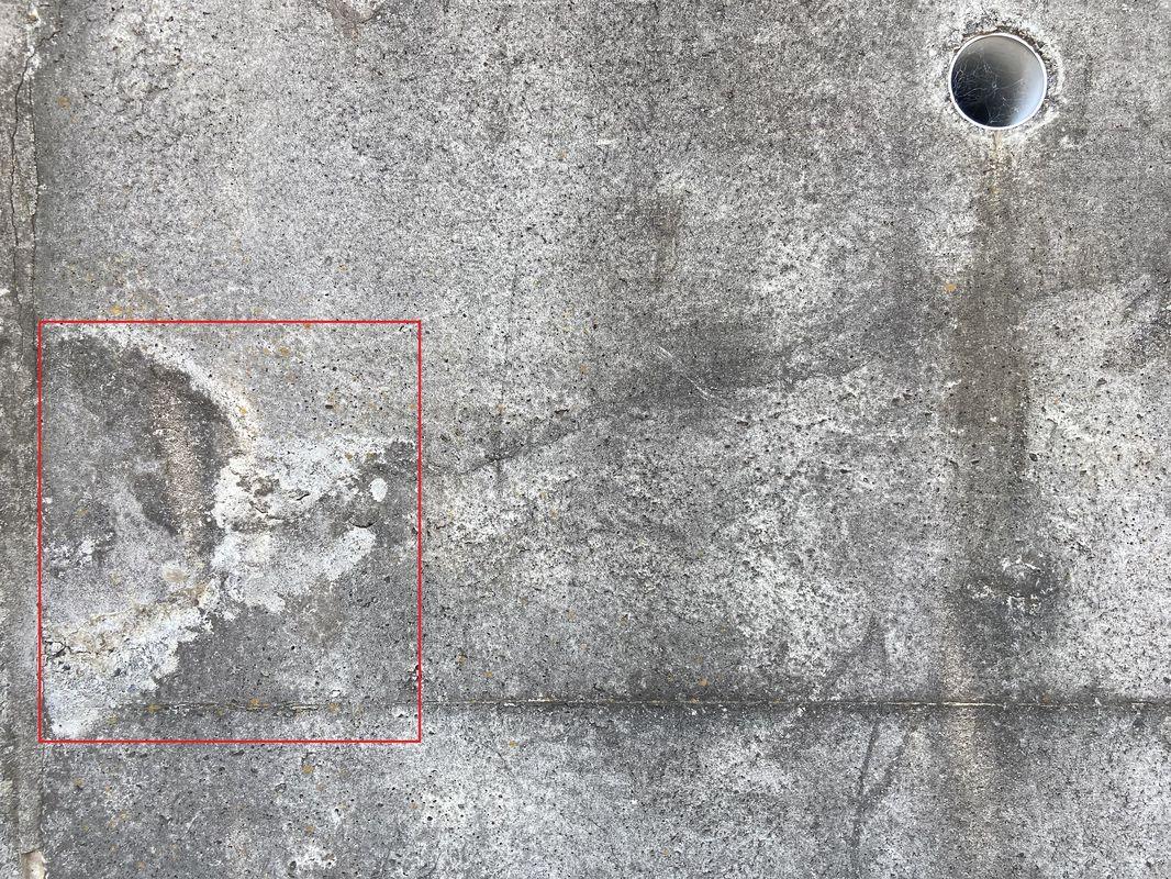遊離石灰検出サンプル3